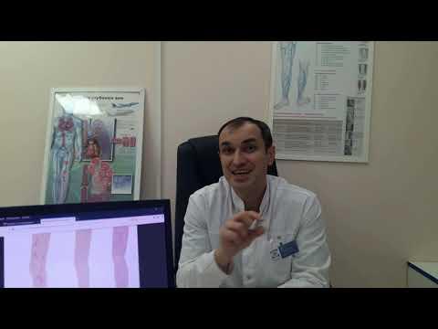 Народные средства лечения варикоза. Флеболог. Москва. | компрессионные | сосудистый | конечности | варикозная | флеболог | операции | варикоз | болезнь | хирург | нижние