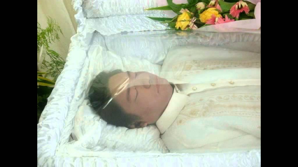 Farrah Fawcett Celebrity Autopsy