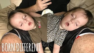 Conjoined Twins Are A Medical Miracle: BORN DIFFERENT