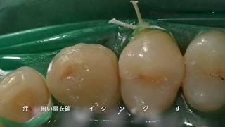 菊川駅前歯科 症例紹介 歯の神経を残す治療 thumbnail