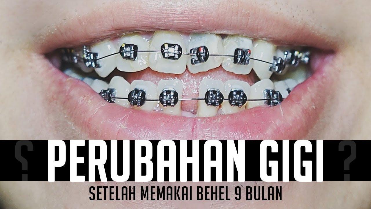 Perubahan Gigi Setelah Memakai Behel Selama 9 Bulan Bedanya Roth