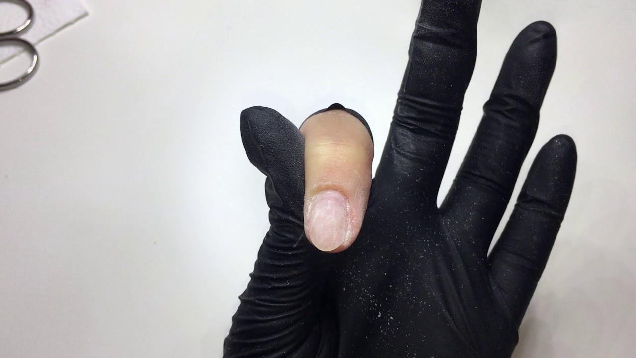 Gyógyítottam a kéz pikkelysömörét
