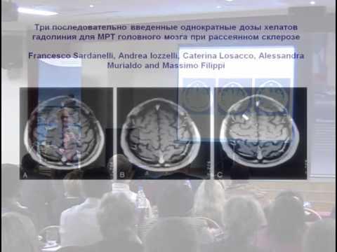 Нервная система - BrainTools