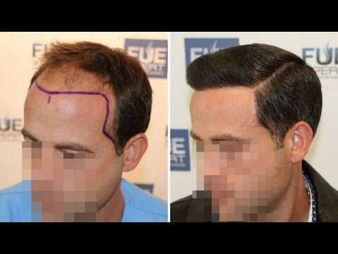 FUE Hair Transplant (3958 grafts in NW-Class lV-A),  Dr. Juan Couto - FUEXPERT CLINIC