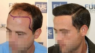fue hair transplant 3958 grafts in nw class lv a dr juan couto fuexpert clinic