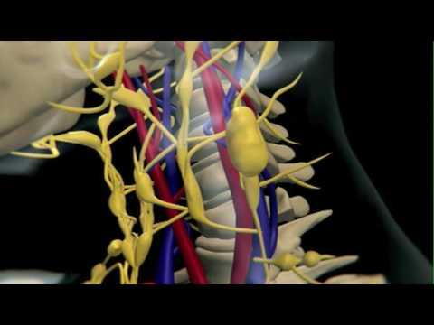How Lymphoma Develops