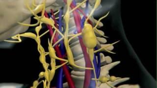 How Lymphoma Develops thumbnail