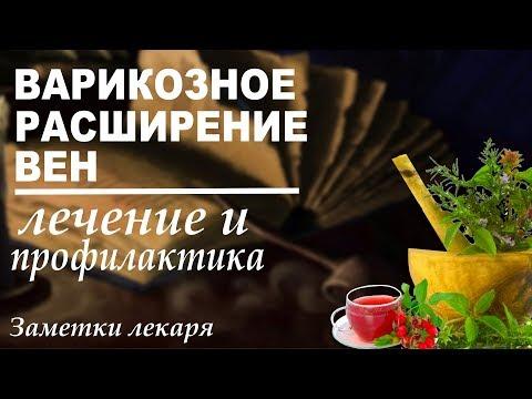 Варикозное расширение вен  Народные рецепты от варикоза