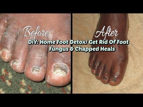 DIY: Home Foot Detox/ How To Get Rid Of Foot Fungus