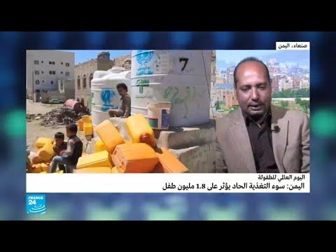 اليوم العالمي للطفولة: سوء التغذية الحاد يؤثر على 1.8 مليون طفل في اليمن  - نشر قبل 20 ساعة