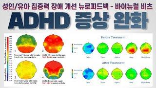 ADHD 증상 완화 | 성인/유아 집중력 장애 개선 뇌…