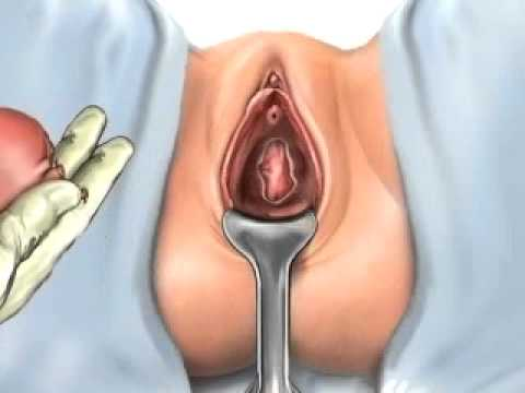 Laparoscopic Assisted Vaginal Hysterectomy - IVF