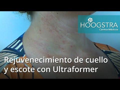 Rejuvenecimiento de cuello y escote utilizando Ultraformer (17135)