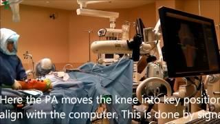 Makoplasty Robotic Knee Replacement