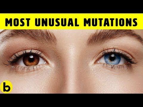 10 Unusual Genetic Mutations Of The Human Body