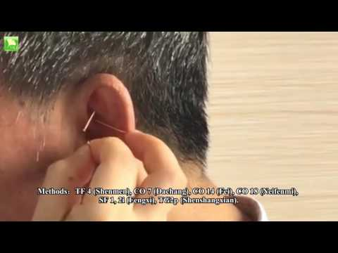 Ear Acupuncture for Allergic Reaction