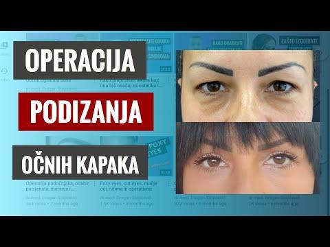 Operacija Kapaka,skidanje Kože Kapaka, Podmladjivanje Očiju, Uklanjanje Kesica Oko Oka