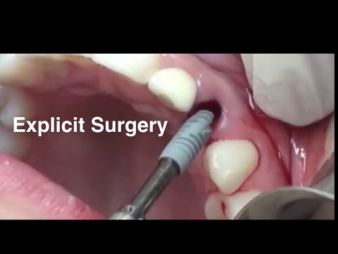 *Immediate Dental Implants - Papilla Reconstruction - explicit