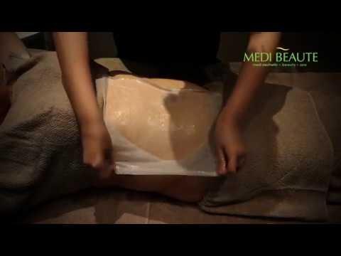 Medi Beaute Cold Fusion Treatment