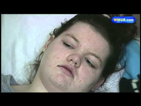 Middleton teen fights deadly genetic disease