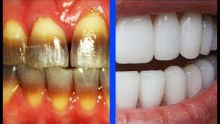 सोडा और निम्बू से दांतो को 2 मिनट में चमकाए | Teeth Whitening At Home In 2 Minutes