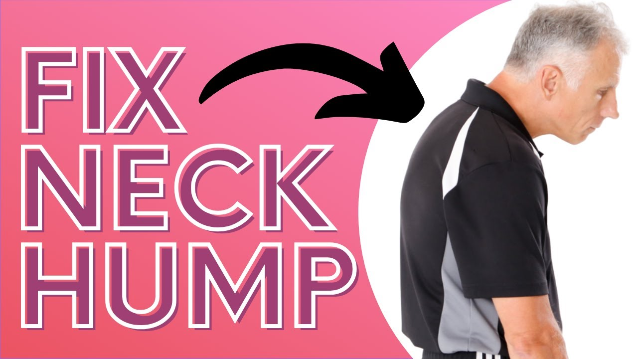 How You Can Get Rid of Neck Hump With a SOCK  Dowager's Hump