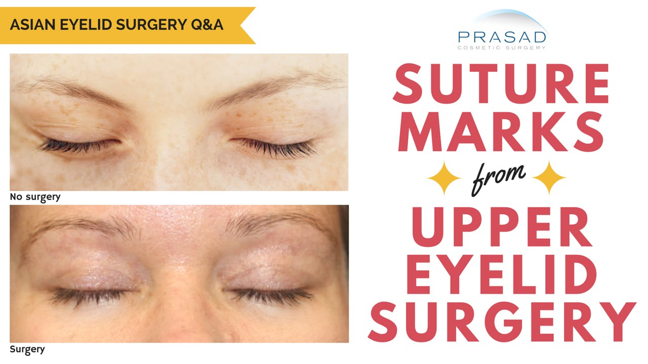 The Healing Process Of Upper Eyelid Surgery And How Suture Marks