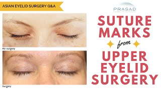 The Healing Process of Upper Eyelid Surgery, and How Suture Marks are Not Noticeable
