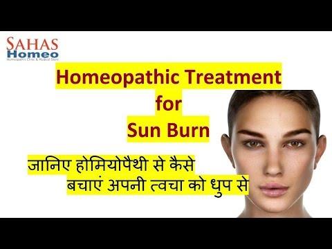 Sun Burn Treatment in homeopathy| Dr. N. C. Pandey, Sahas Homeopathy