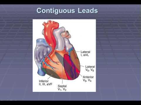 Cardiac Emergencies 2014 Refresher