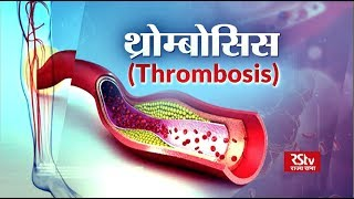 kenőcs visszér thrombophlebitis