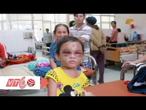 Xót lòng bé 4 tuổi bị bạo hành | VTC