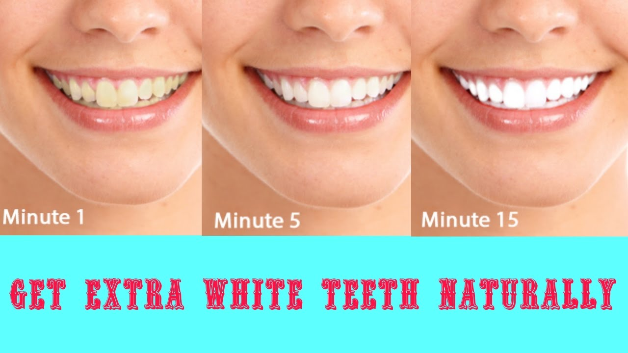 How To Get White Teeth In 2 Minutes Natural Home Remedy Youtube