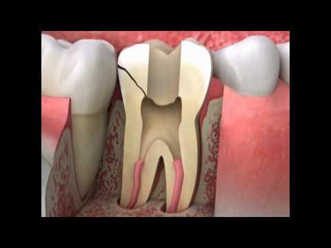 cracked-tooth-symptoms- -lake-merritt-dental,-oakland,-ca