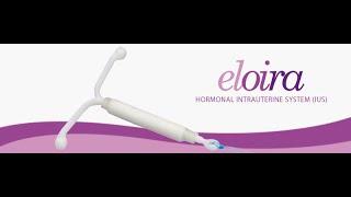 Eloira Loading & Insertion Mechanism - Hormonal IUD