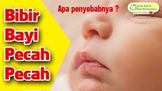 Bibir Bayi Pecah Pecah. Apa Masalahnya ?