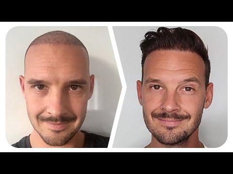 Youtuber spricht über seine Haar OP!