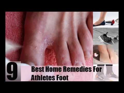 Best Home Remedies For Athletes Foot