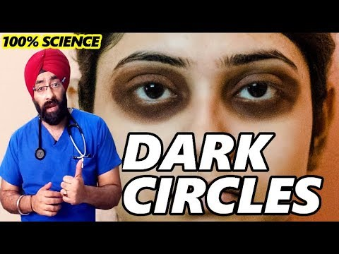 Permanently Cure DARK CIRCLES : आँखों के काले घेरे | Science + Home Remedy in HIndi | Dr.Education