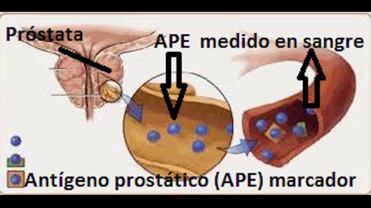 marcador de la próstata