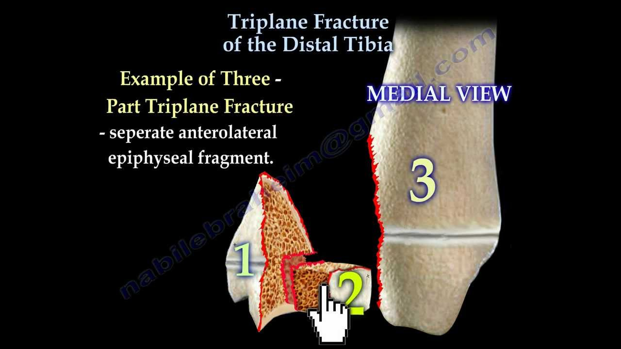 Triplane Fracture Of The Distal Tibia - Everything You Need To Know ...
