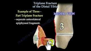 Dr. Ebraheim's educational animated video describes the triplane gr...