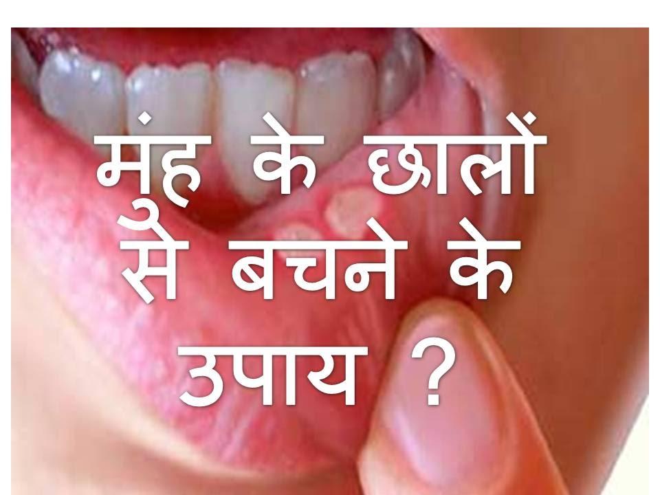 Natural Home Remedies for Mouth Ulcers मुंह के छालों से बचने के उपाय