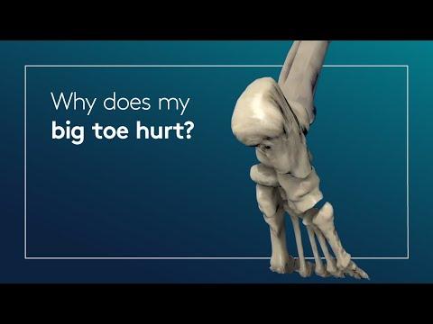 Why Does My Big Toe Hurt?