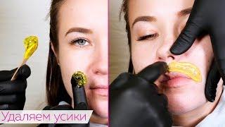 Эпиляция УСИКОВ у девушки / Шугаринг усов от Яны Осадчей