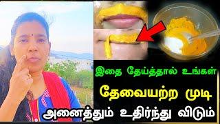 இதை தேய்த்தால் உங்கள் தேவையற்ற முடி அனைத்தும் உதிர்ந்து விடும் | Unwanted Hair Removal in Tamil