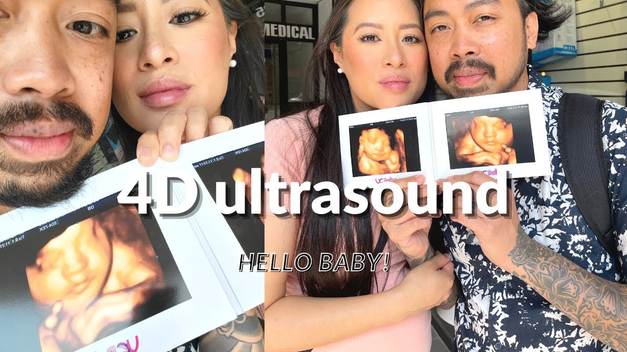 MEETING BABY AT THE 4D ULTRASOUND // 32 week ultrasound // Baby Series