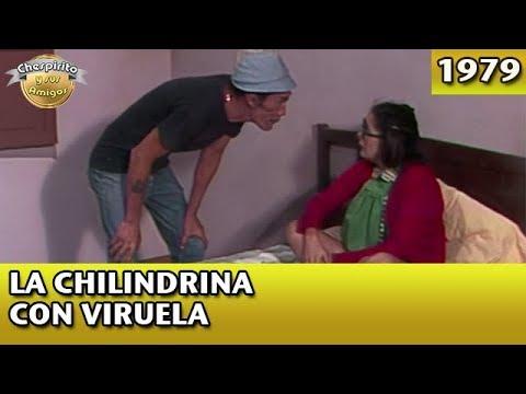 El Chavo |La Chilindrina con viruela (Completo)