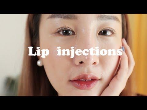 เล่าประสบการณ์ฉีดฟิลเลอร์ปากแบบสาวเกา ดีจริงไหม ตอบทุกคำถาม?!💉👄| Brinkkty