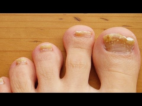 Home remedies for brittle nails | Treatment for brittle nails from YouTube · Duration:  2 minutes 26 seconds
